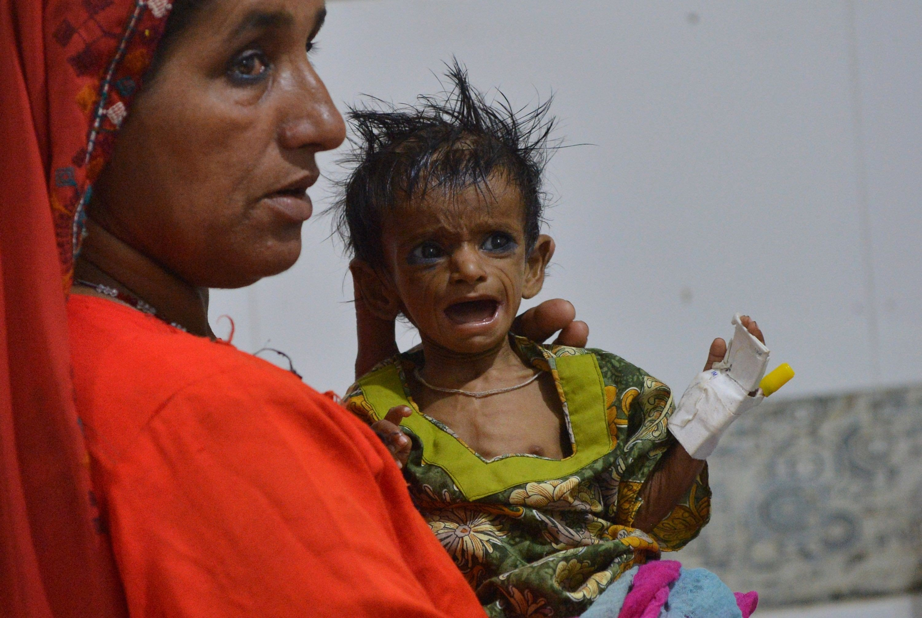 Millions of babies are starving in Pakistan despite an abundance of