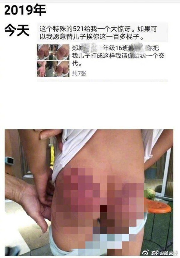 One of the boy's parents posted pictures of his bruises on social media. Photo: Weibo