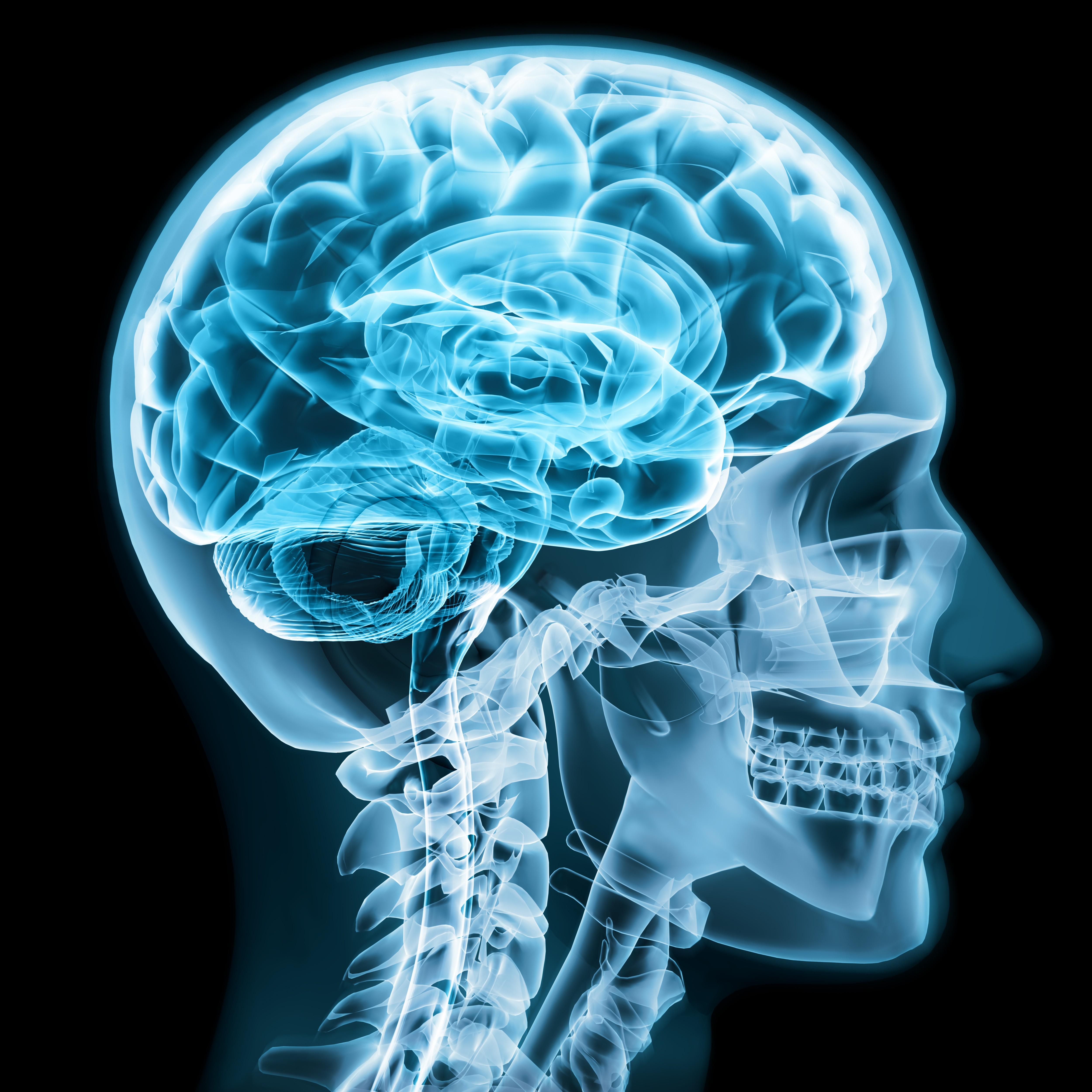 New York surgeons find tapeworm in Rachel Palma's brain