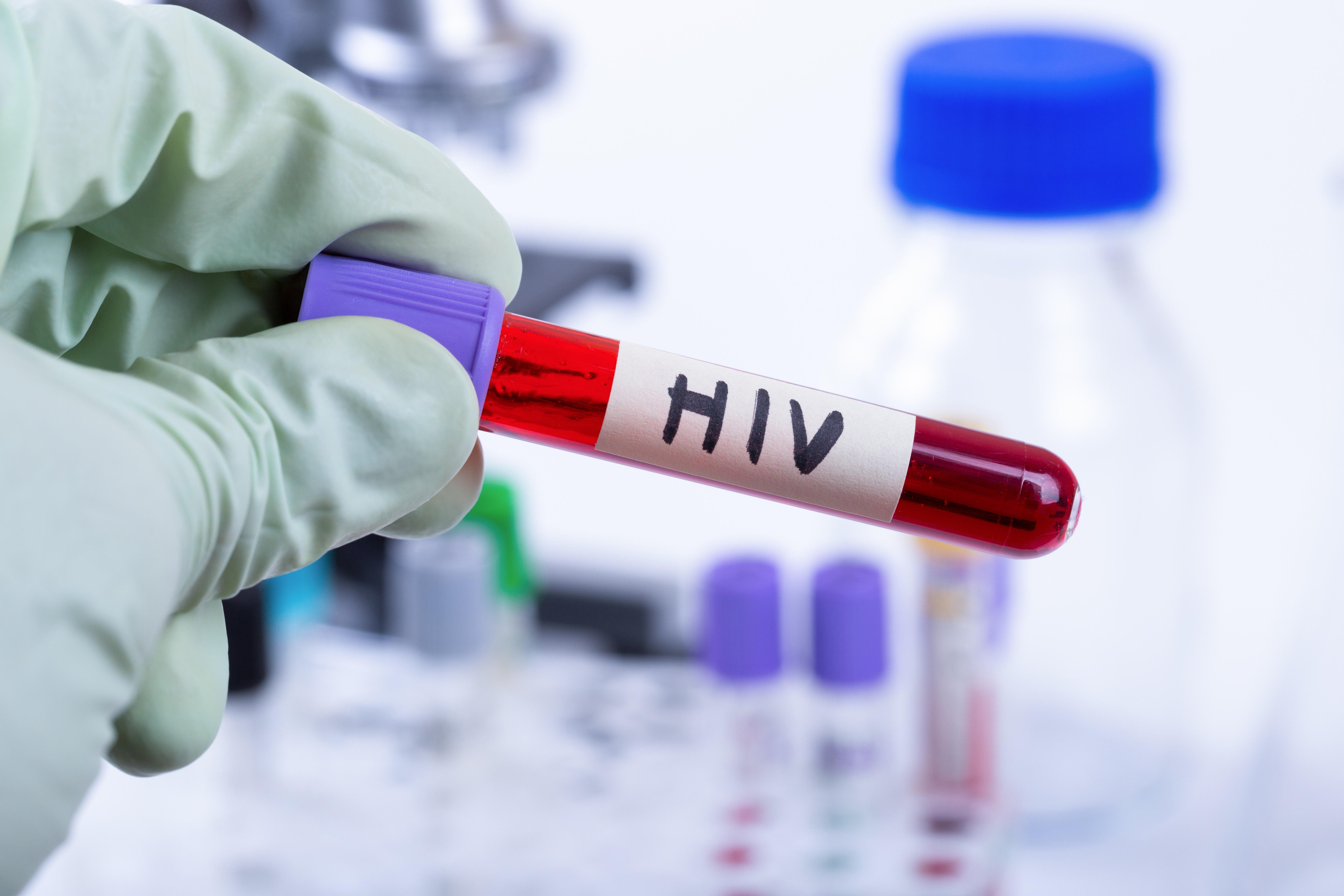 New implant and vaccine trial offer fresh HIV hope | South China