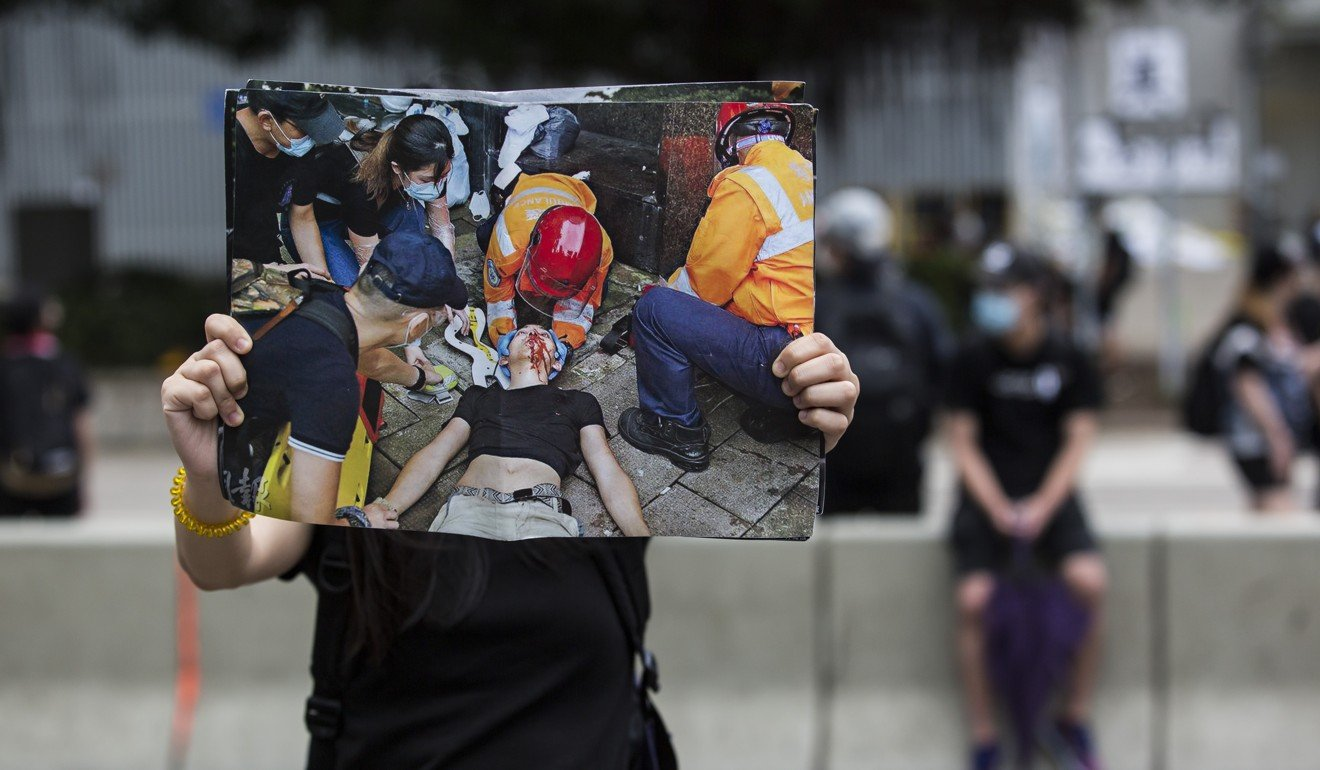 A protester holds up an image of the Hong Kong student injured during violent clashes with police. Photo: AFP