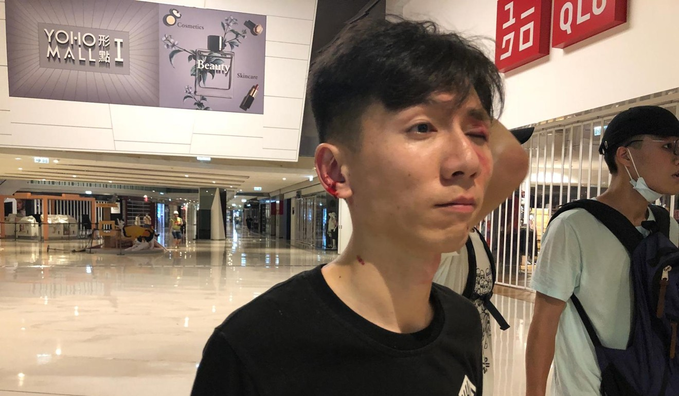 A protester had wounds to his eye and ear after being attacked at Yuen Long MTR station. Photo: Jeffie Lam