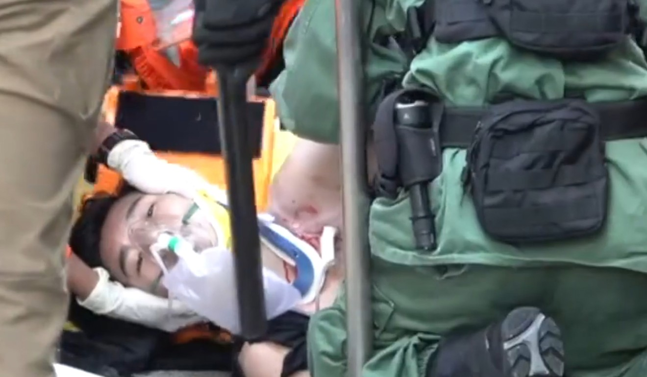 The 18-year-old protester underwent surgery and is in critical condition. Photo: Handout
