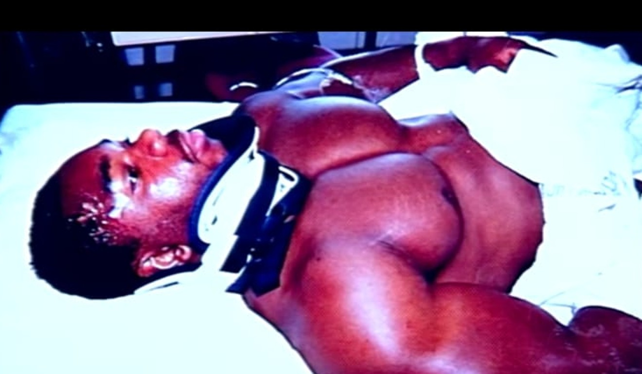 Flex Wheeler in a neck brace after his 1994 car accident.