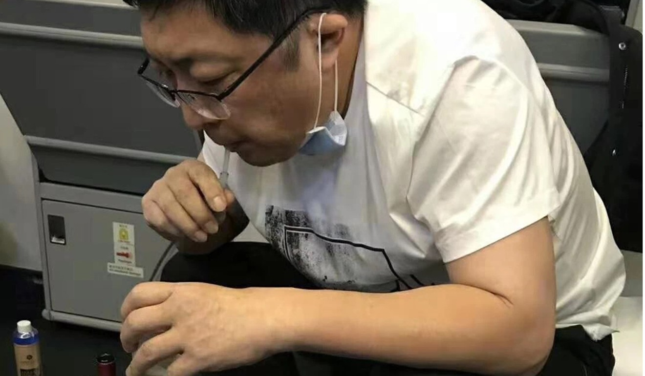 Surgeon Zhang Hong draws out the fluid to ease pressure on the patient's bladder. Photo: WeChat
