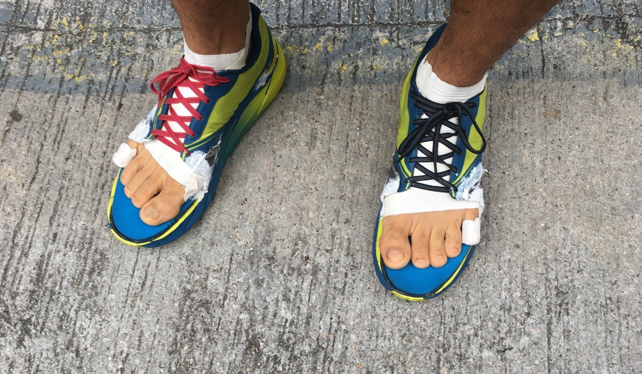 Phairat Varasin is running the 298km event in self-modified shoes to accommodate his wide toes. Photo: Mark Agnew