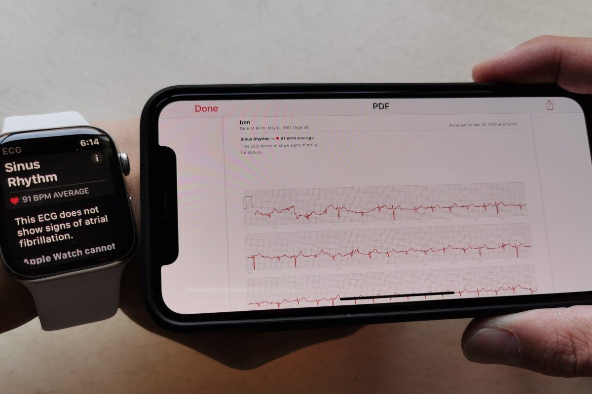 Apple Watch irregular heartbeat detection features debut in 19