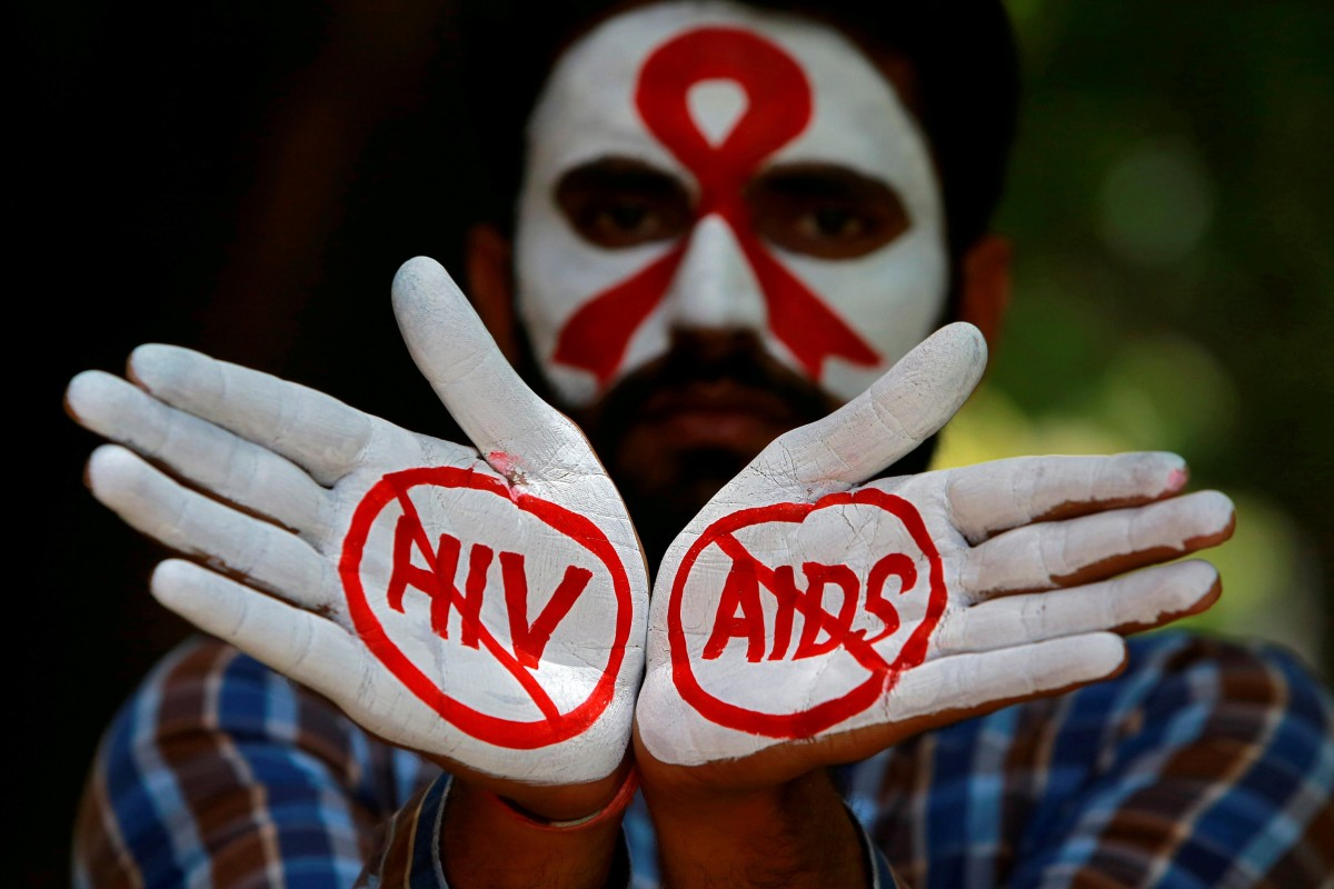 End of Aids in sight? New medication prevents virus being