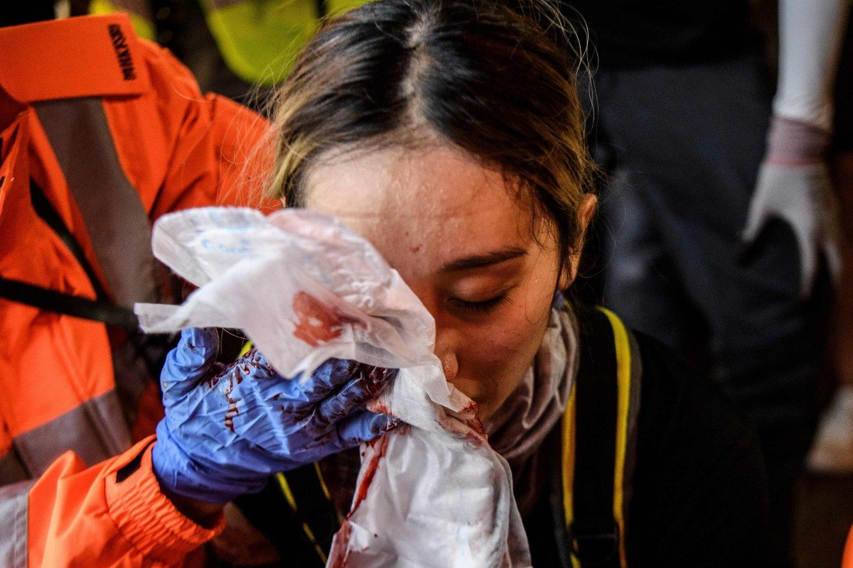 Hong Kong protests: woman who suffered eye injury in violent