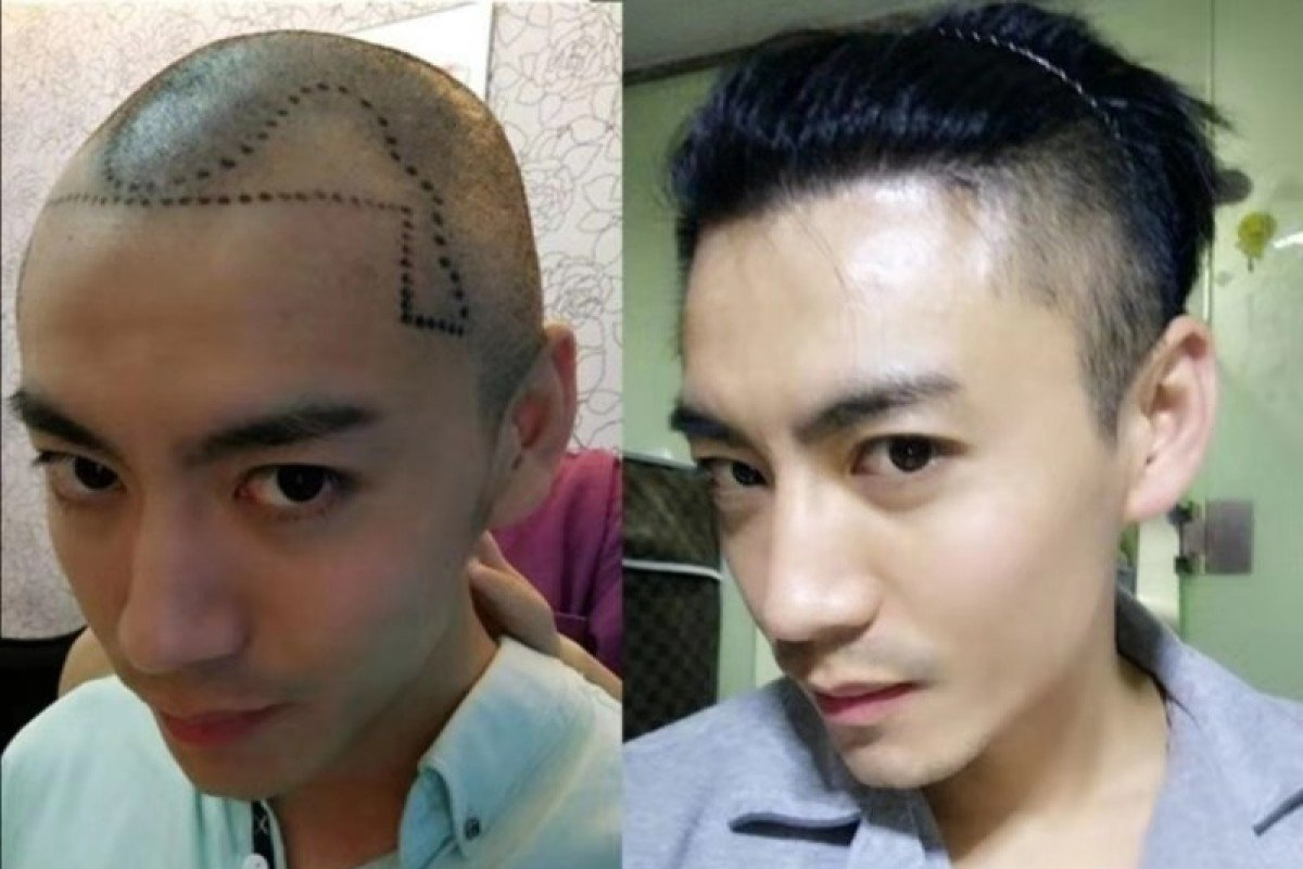 Millennial Chinese Men Going Bald Younger Getting Hair Transplants To Restore Their Locks And Confidence South China Morning Post