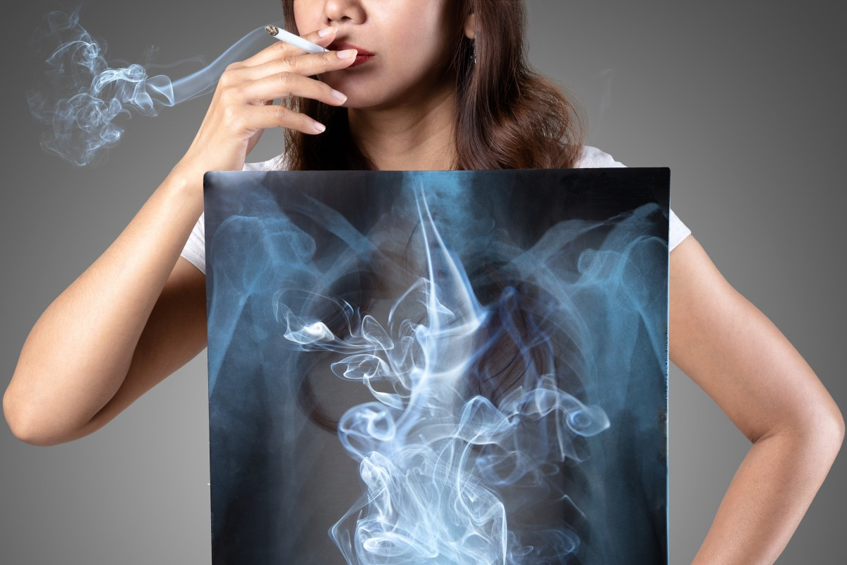 World health bodies and officials are warning that smokers are more likely to get Covid-19 and more likely to become seriously ill, thereby increasing the chances of death. Photo: Shutterstock
