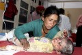 A woman attends to her injured child receiving treatment at a hospital in Kullu, in the northern Indian state of Himachal Pradesh. Photo: AP