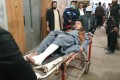 A wounded victim is brought for treatment after a bomb blast in Quetta on January 10, 2020. Photo: EPA-EFE