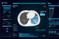 Infervision, a Chinese medical imaging artificial intelligence system developer launches its AI-based solution InferRead CT Lung Covid-19. Photo: Handout