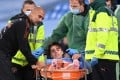 Adrian Bernabe of Manchester City is stretchered off injured watched by Manchester City manager Pep Guardiola. Photo: EPA