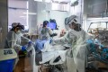 Nurses wearing personal protective equipment (PPE) attend to a Covid-19 patient in the Intensive Care Unit (ICU) at Providence Cedars-Sinai Tarzana Medical Center in Tarzana, California. Photo: AFP