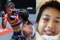 Jackie Buntan punches Wondergirl Fairtex (left), who reveals her injuries on Instagram (right). Photo: ONE Championship/@natwondergirl