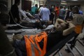 Palestinians hurt by an Israeli air strike receive treatment at the Shifa Hospital in Gaza City. Photo: AP