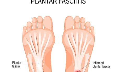 Plantar fasciitis can cripple runners, but a small adjustment in foot position or support can solve it. Photo: Getty Images/iStockphoto