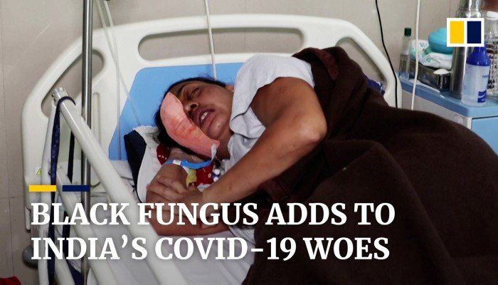 Black fungus adds to India's Covid-19 woes