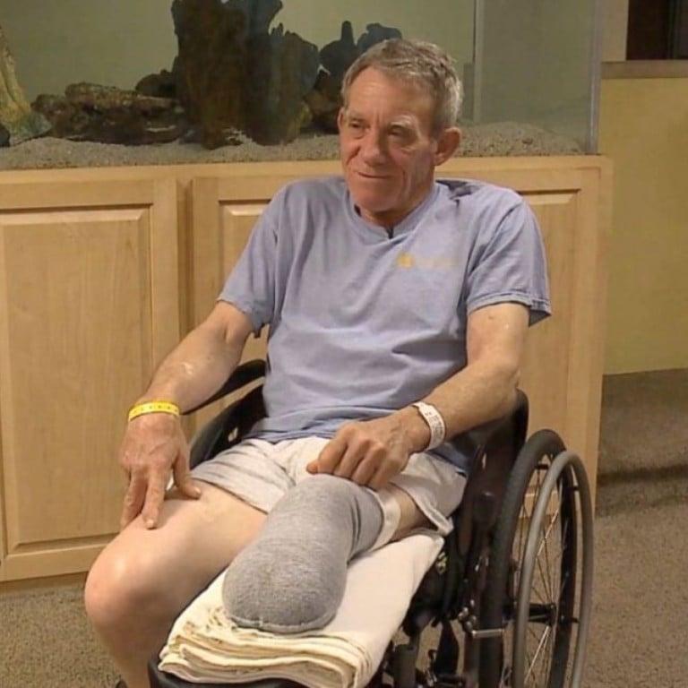 US farmer Kurt Kaser's grisly '127 Hours' amputation ordeal