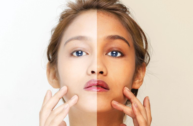 Asia is obsessed with skin whitening – but the backlash is beginning