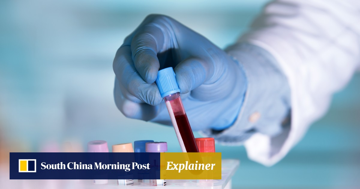 Blood samples to identify sex of babies are being hidden in