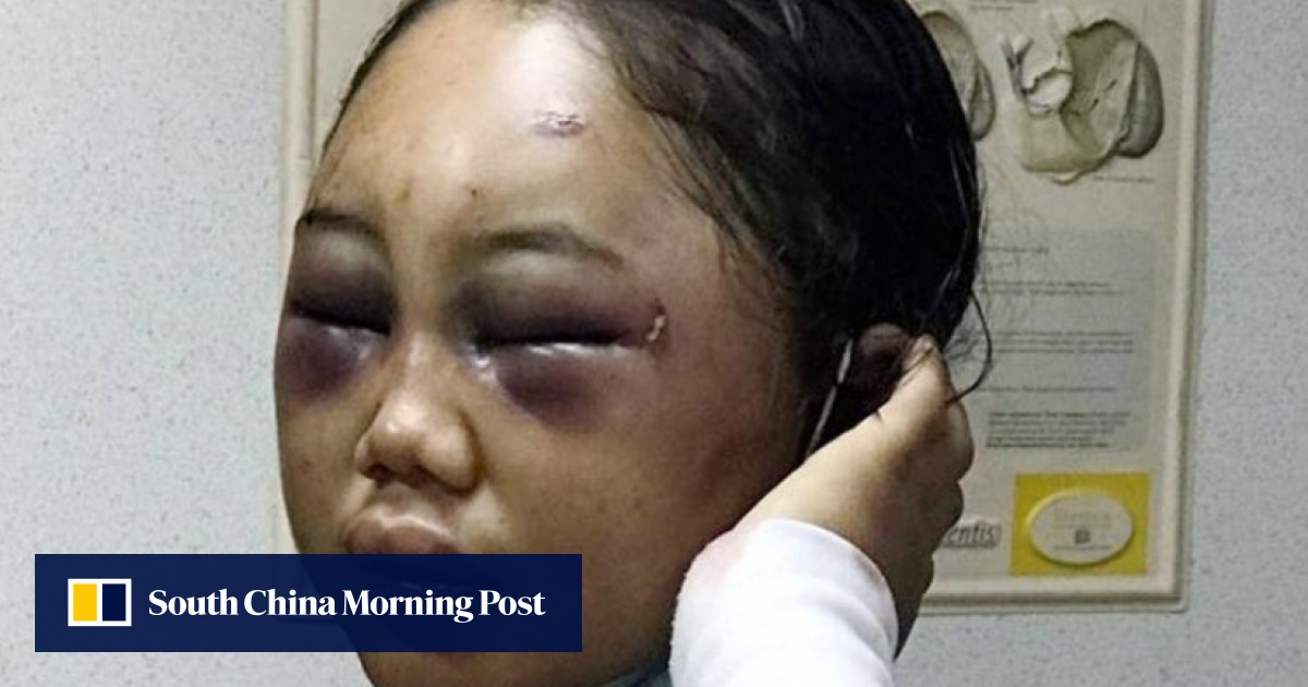 Starved, beaten with hammer, slept with dog: worst domestic worker abuse cases of Hong Kong, Singapore and Malaysia